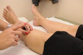 El uso del ozono en clínicas de acupuntura